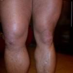 Noga Kamila Bazelaka